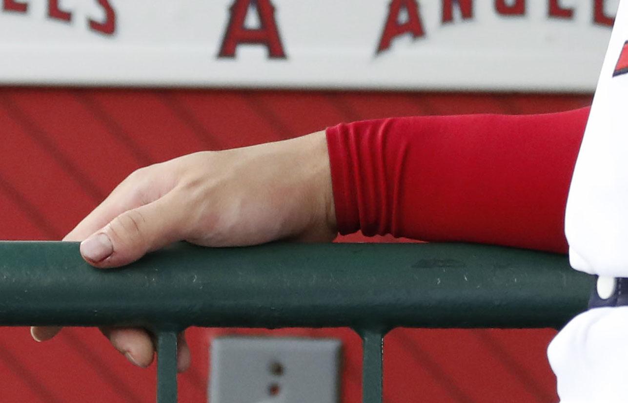 ファウルボールを受けていたエンゼルス大谷の右手親指。次回登板がずれ込むと球団が公表した(共同)