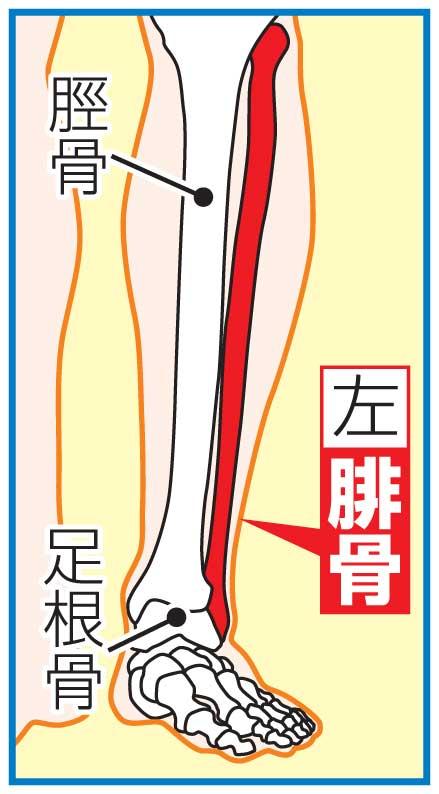 西武外崎の骨折部位