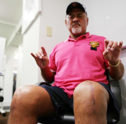 武藤敬司の両膝の手術痕