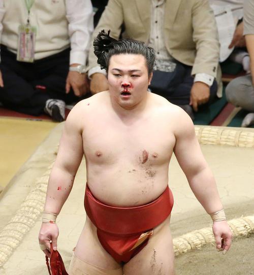 松鳳山との激しい取組の末、鼻から流血する炎鵬(撮影・河田真司)