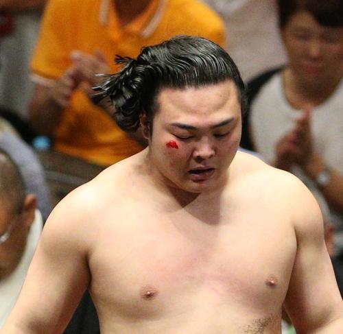 顔面から出血する炎鵬(撮影・中島郁夫)