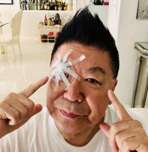 右目の白内障の手術を受けた生島ヒロシ