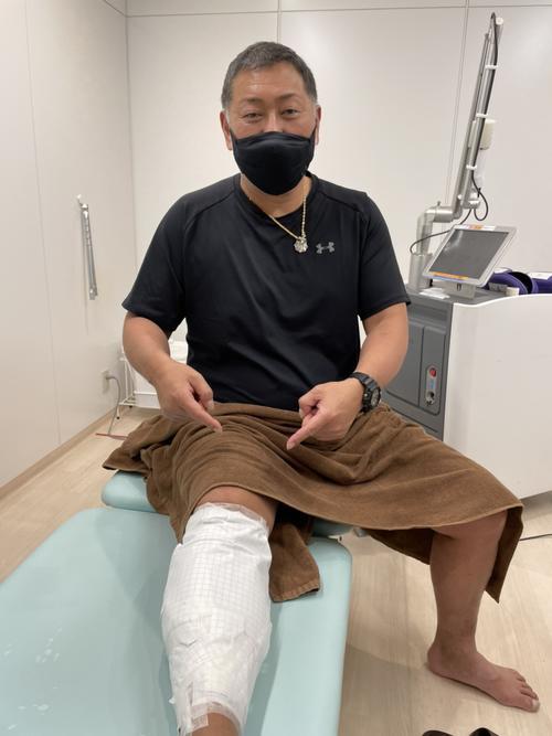 東京・湘南美容クリニック新宿本院で、右足にピコレーザー入れ墨除去治療を受けた清原和博氏